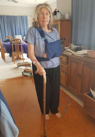 glamour accident